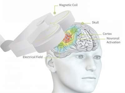 تحریک مغناطیسی مغز (rTMS)