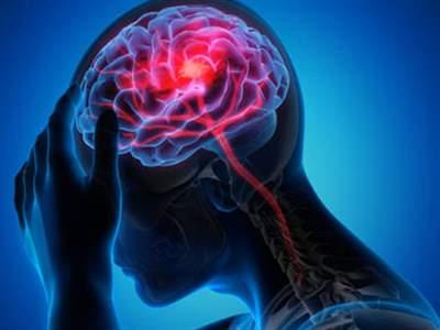 سکته مغزی؛ علائم، علل، تشخیص و درمان ایسکمی مغزی
