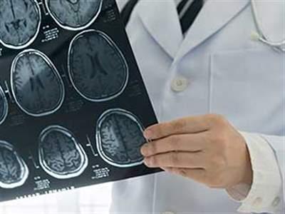 دکتر تشنج در تهران