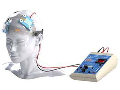 تحریک الکتریکی مغز (tdcs)